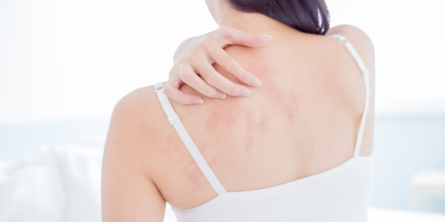 Numerous reports of skin rashes in patients with COVID-19 are cropping up around the world. (iStock)