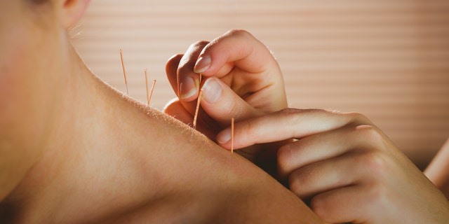 A group of researchers in China say acupuncture may help relieve discomfort from ingestion. (iStock)
