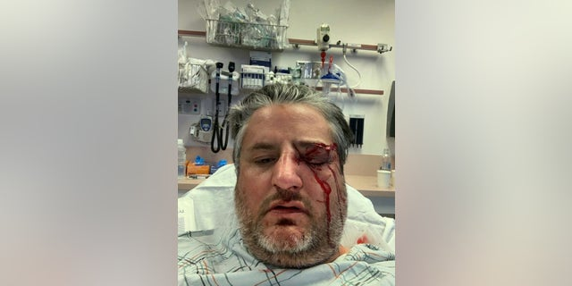 Guardian Angel, Aram Sabet, sustained a broken eye socket and broken nose, and received 48 stitches (Guardian Angels)