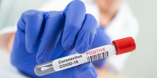 """A study found """"long COVID"""" symptoms may be caused by trapped inflammatory cells in micro blood clots."""
