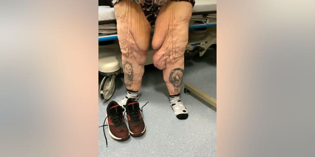 Jen Costa's legs before the operation. (SWNS)