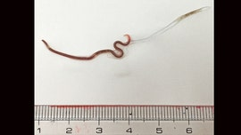 Doctors find black worm in woman's tonsil after throat pain