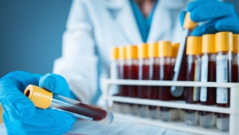 New blood test detects Alzheimer's on par with expensive diagnostic tools, study finds