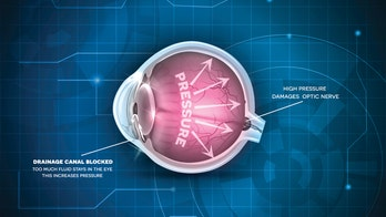 Diet may lower glaucoma subtype risk by 20 percent, researchers say