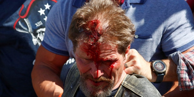 A man bleeds from his head after being injured at a pro-law enforcement rally that clashed with counter-protesters demonstrating against racial inequality, in Denver, Colorado, U.S. July 19, 2020. (Reuters/Kevin Mohatt)