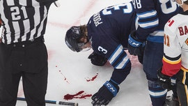 Winnipeg Jets defenseman drilled in the face by puck, leaves trail of blood on ice