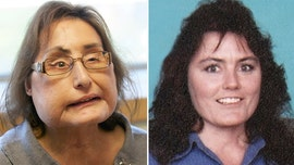 Ohio woman who received first US face transplant dead at 57