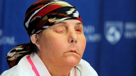 New Hampshire woman is first American to undergo two full face transplants