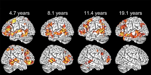 Activation maps of various ages. As seen in the bottom row, right-hemisphere language activation gradually declines over time. (Photo courtesy of Elissa Newport)