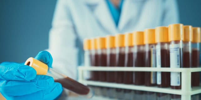 A recent study suggests a standard component of routine blood tests may serve as a useful predictor of COVID-19 severity and risk of mortality.(iStock)