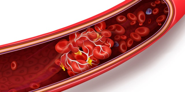 Blood clot (Credit: iStock)
