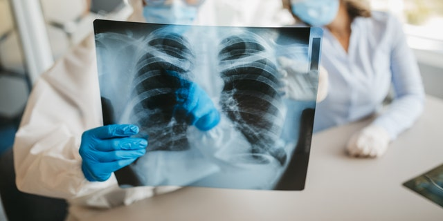 """Speaking to Reuters, Mauro Giacca, a professor at King's College London who co-led the study, said that the heart, liver and kidneys in the deceased patients had """"no overt signs of viral infection or prolonged inflammation."""" But in the lungs, the researchers found """"really vast destruction of the architecture of the lungs."""" Any healthy lung tissue was """"almost completely substituted by scar tissue,"""" he noted."""