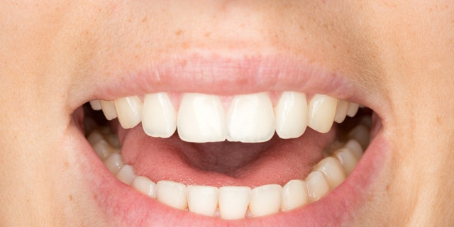 While the study presents a convincing case that SARS-CoV-2 infects cells in the mouth, a number of questions remain unanswered.  (iStock)