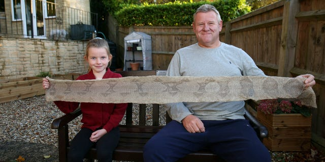 A 7-year-old girl found that her skin was peeling off due to a larger chest spasm when she was walking with her grandfather.