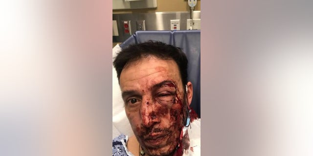 "Emerson Antonio Aroche Paz was struck in the head twice around 10 p.m. Nov. 25, he <a href=""https://www.bostonglobe.com/2020/12/01/metro/waltham-authorities-offer-5000-reward-information-person-or-persons-responsible-spate-random-attacks/"">told The Boston Globe.</a> (Facebook)"