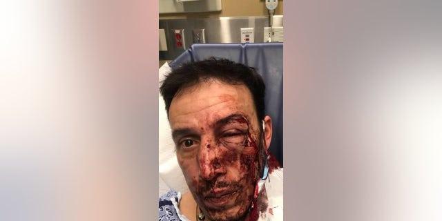 "Emerson Antonio Aroche Paz was struck in the head twice around 10 p.m. Nov. 25, he<a href=""https://www.bostonglobe.com/2020/12/01/metro/waltham-authorities-offer-5000-reward-information-person-or-persons-responsible-spate-random-attacks/"">told The Boston Globe.</a>(Facebook)"