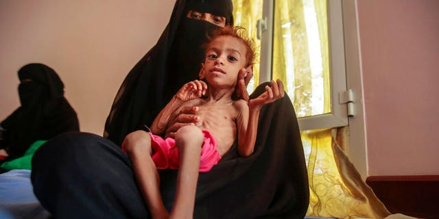 FILE - On October 1, 2018, a file with a photo, a woman is holding an malnourished boy at the Aslam Health Center, Hadja, Yemen.  A leading aid organization warned on Monday that US Secretary of State Mike Pompeo's move to identify Iran-backed Houthi rebels as