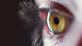 Some coronavirus patients left with nodules on eyeballs, study finds