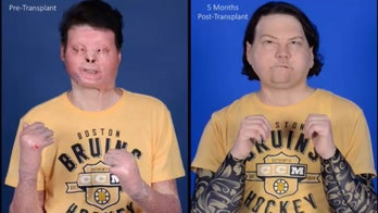 New Jersey man's double-hand, face transplant is world's first successful attempt