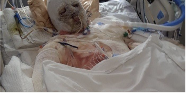 DiMeo, pictured in the hospital after the accident, spent three months in a medically-induced coma.