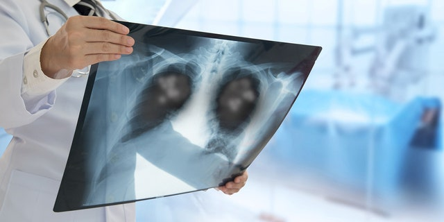 Lung cancer is the nation's top cancer killer, causing more than 135,000 deaths each year.