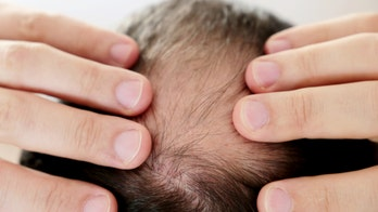 Why can chronic stress result in hair loss? New research provides clues