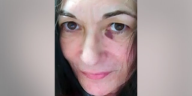Image shows Ghislaine Maxwell's black eye as of April 29, 2021 (court documents)