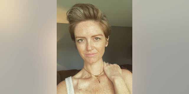 Thackston is pictured last month after a haircut. She lost most of her hair over the summer due to malnutrition, not chemotherapy, she said.