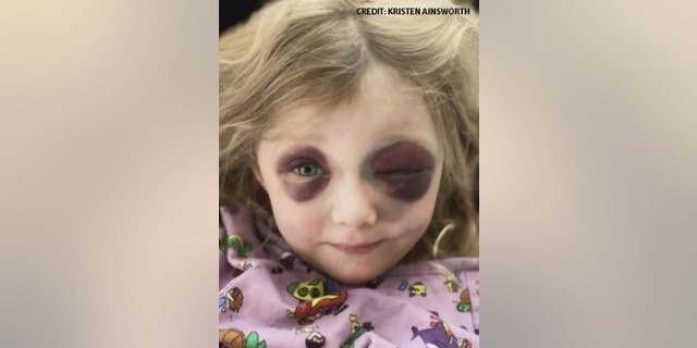 A North Texas 3-year-old girl is recovering from a traumatic brain injury and facial fractures after a freak accident with a horse.