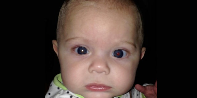 Asher's right eye had a white glow to it, alerting his mother to seek medical attention for her son, who was 3-months old at the time.