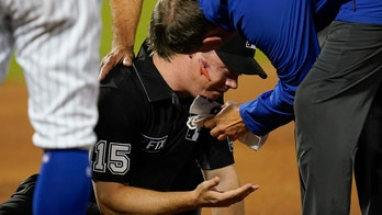 MLB umpire hit in face with baseball on errant throw during Cardinals-Mets game