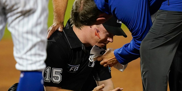 First base umpire Junior Valentine is checked by a trainer after he was hit by a thrown ball during the second inning of a baseball game between the New York Mets and the St. 루이스 카디널스, 월요일, 씨족. 13, 2021, 뉴욕에서. (AP 사진/프랭크 프랭클린 II)