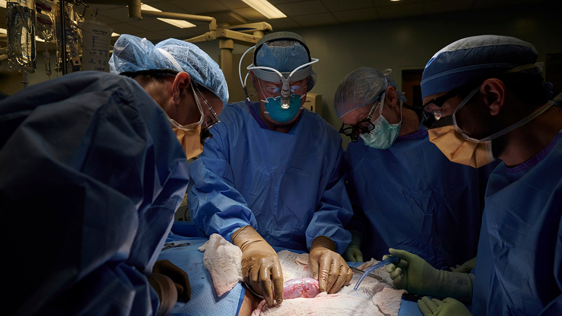 Pigs Kidney transplanted into adult female woman