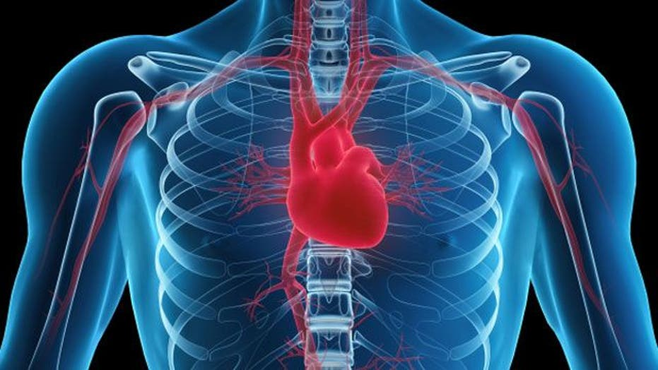 What is an enlarged heart?