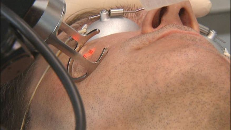 Many acne sufferers are left with deep scars that last long after the breakouts have cleared up. But a new laser procedure to erase those scars offers patients smoother skin after one treatment with half the recovery time of traditional laser resurfacing