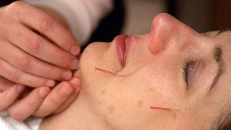 Acupuncture: Risks and benefits