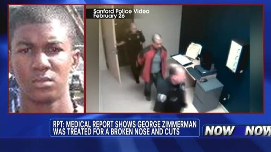 Report: Medical report shows George Zimmerman was treated for a broken nose and cuts.