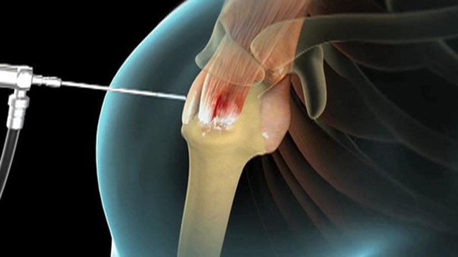 Surgery to Heal Shoulder Pain