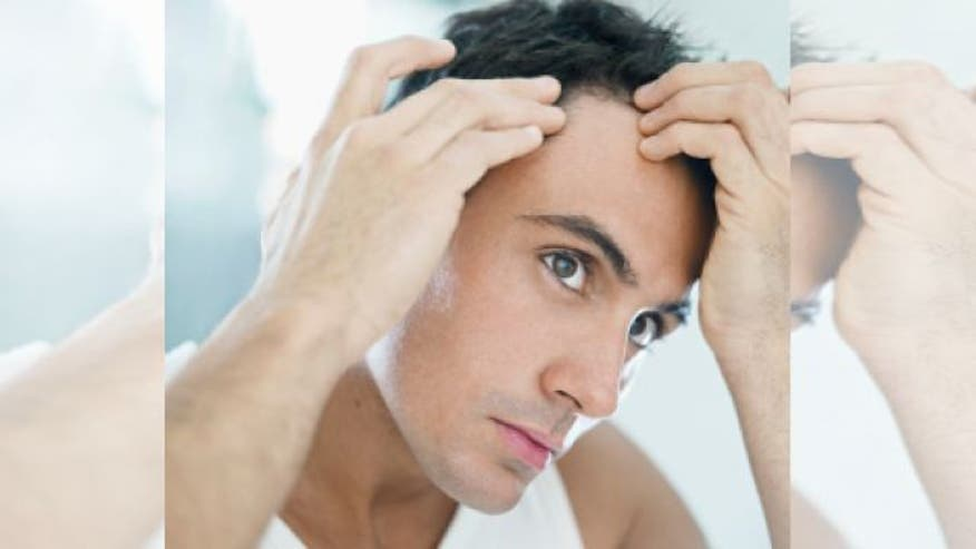 Destination Health: Although there is nothing you can do to prevent going bald - there are some things you can do to slow hair loss