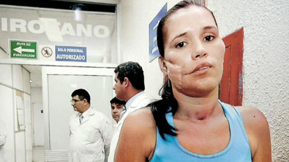 Woman Survives Live Grenade Lodged in Face