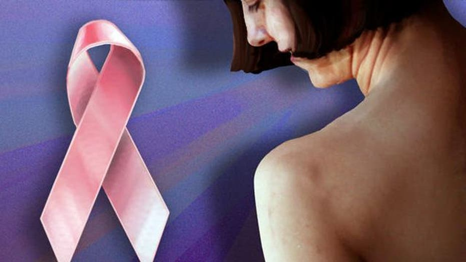 Scientists identify 4 distinct types of breast cancer