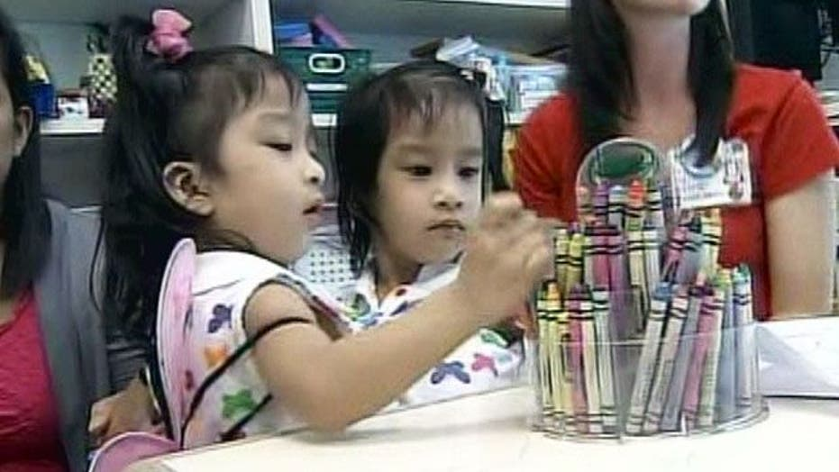 Conjoined Twins Prepare for Separation Surgery