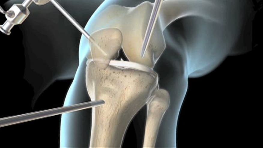 Under the Knife: One of the most common knee injuries in the United States is a tear in the anterior cruciate ligament, or ACL. Dr. Manny takes us inside the operating room to see what happens during an ACL repair