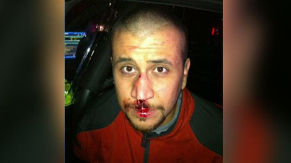 Image of bloodied Zimmerman on night of Trayvon Martin clash